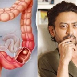 Irrfan Khan Colon Infection