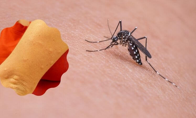 mosquito bites itching Remedies